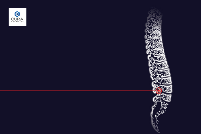 Different Types of Spine Surgery